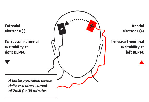 tDCS Mode of Action